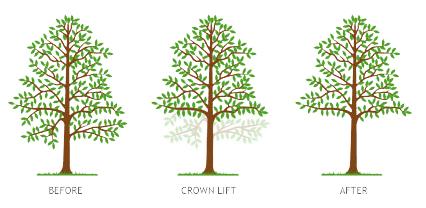 Crown Lifting